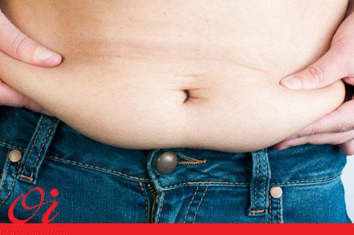 جلوگیری ازشلی پوست پس از کاهش وزن